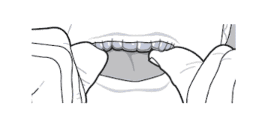 placing an aligner into the mouth